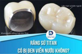 Răng sứ titan có bị đen viền nướu hay không?