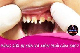 Răng sữa bị sún và mòn phải làm sao?