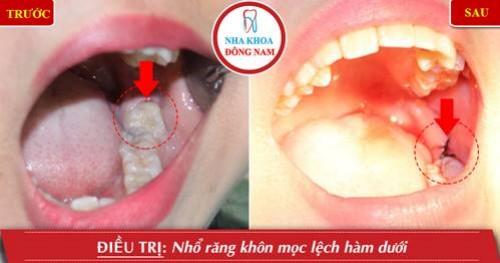 nhổ răng khôn hàm dưới mọc lệch