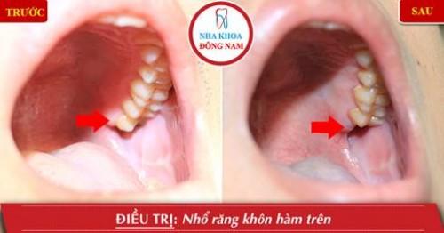 nhổ răng khôn hàm trên
