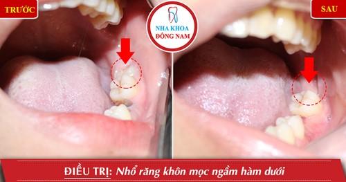 nhổ răng khôn hàm dưới mọc ngầm