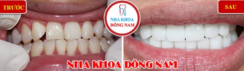 bọc răng sứ cho răng ố vàng