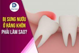 Bị sưng nướu ở răng khôn phải làm sao?