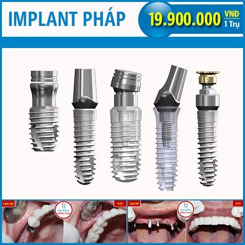 trụ implant pháp