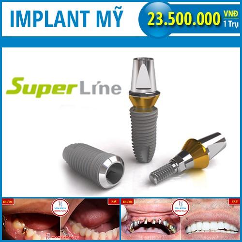 trụ implant mỹ