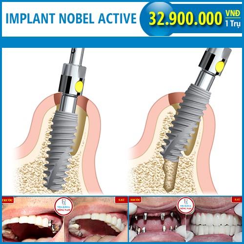trụ implant nobel active