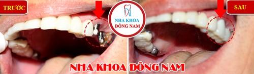 trồng implant 2 răng hàm trên