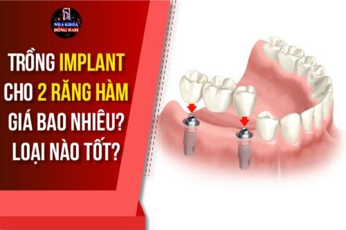 Trồng Implant cho 2 răng hàm giá bao nhiêu? Loại nào tốt?