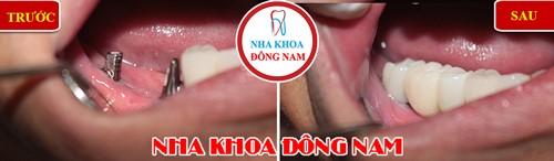cấy 2 trụ implant phục hình 3 răng hàm nhai