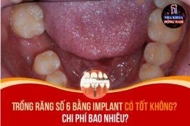 Trồng răng số 6 bằng Implant có tốt không? Chi phí bao nhiêu?