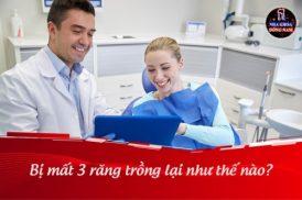 Bị mất 3 răng cấm trồng lại như thế nào?