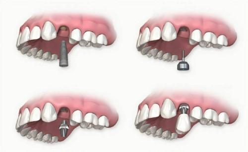 mô phỏng kỹ thuật cấy ghép răng implant