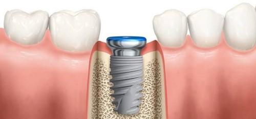 đặt trụ implant vào xương hàm