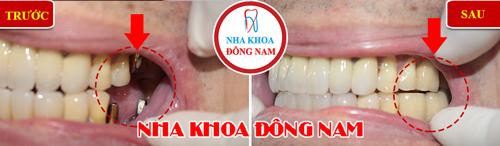 bị mất 3 răng cấm trồng lại bằng implant