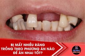 Bị mất nhiều răng trồng theo phương án nào để ăn nhai tốt?