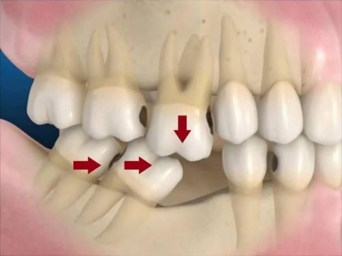 hiện tượng xô lệch răng