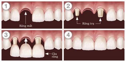 mô phỏng trồng răng sứ bắc cầu