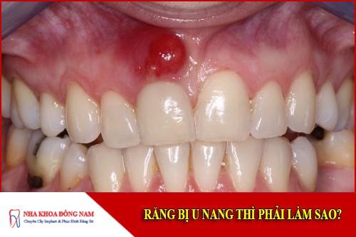 Răng bị u nang thì phải làm sao?