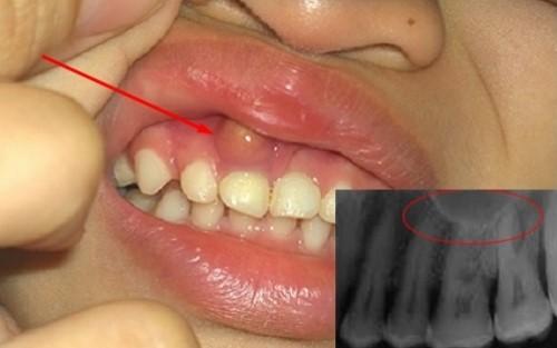 u nang răng