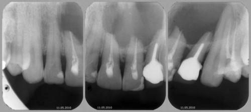 u nang chân răng