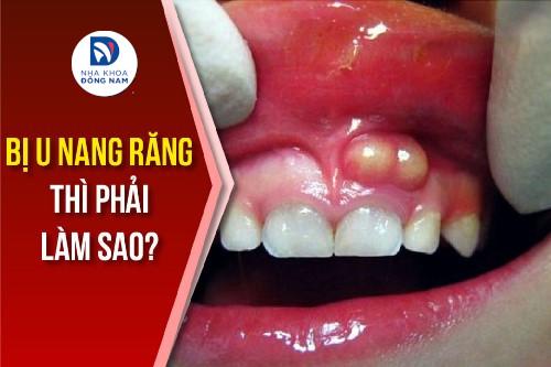 bị u nang răng thì phải làm sao