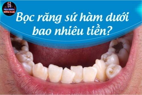Bọc răng sứ hàm dưới bao nhiêu tiền?