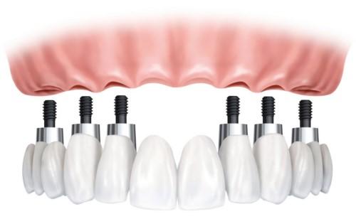 trồng implant nguyên hàm