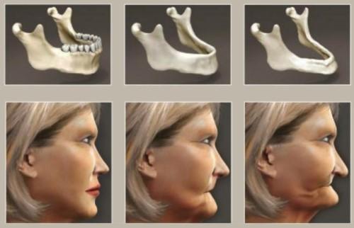 lão hóa do tiêu xương hàm khi mất răng