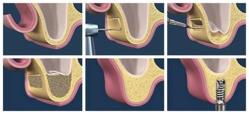 nâng xoang đặt trụ implant