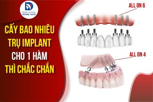 Cấy bao nhiêu trụ Implant cho 1 hàm thì chắc chắn