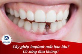 Cấy ghép Implant mất bao lâu? Có sưng đau gì không?