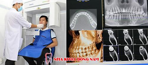 chụp phim CT kiểm tra răng