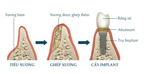mô phỏng cấy ghép xương và đặt trụ implant