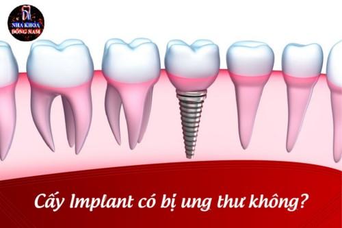 Cấy Implant có bị ung thư không?