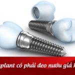 Cấy Implant có phải đeo nướu giả không?