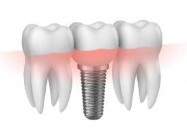 Cấy Implant có thể về trong ngày không?
