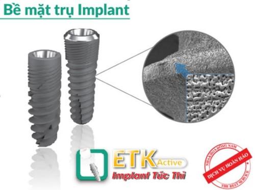 răng implant etk active