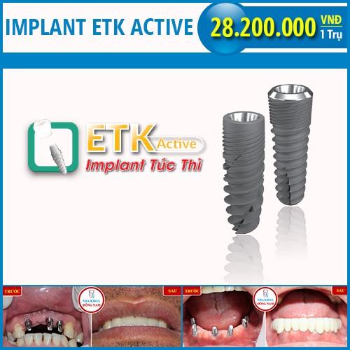 giá răng implant ETK active