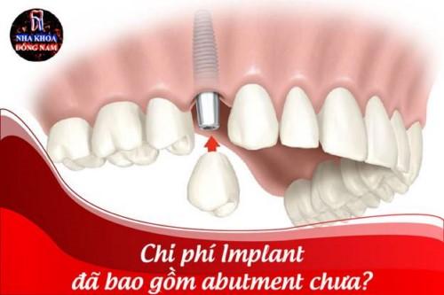 Chi phí Implant đã bao gồm abutment chưa?