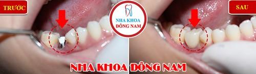 trồng 1 trụ implant răng nhai