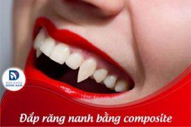 Tư vấn cụ thể: Đắp răng nanh bằng Composite