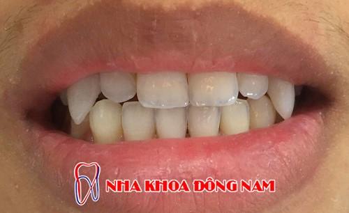 đắp răng nanh bằng composite