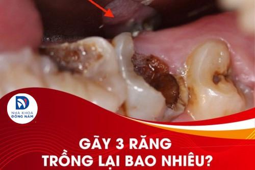 Gãy 3 răng trong cùng trồng lại bao nhiêu thưa bác sĩ?
