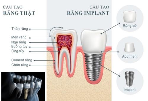 cấu tạo của răng implant