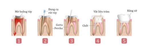 mô phỏng quy trình chữa tủy răng