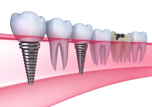 Giá Implant trọn gói thấp nhất là bao nhiêu?