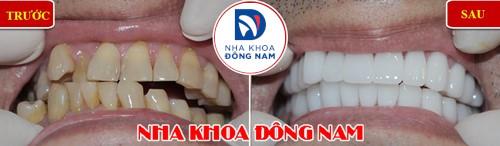 bọc sứ cho hàm răng mọc lệch