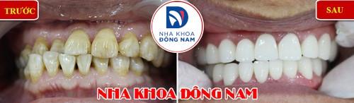 bọc sứ cho hàm răng xô lệch không đều