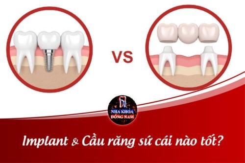 Implant và Cầu răng sứ cái nào tốt?