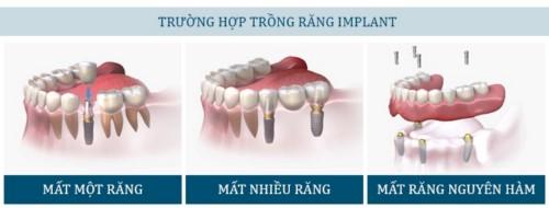 các trường hợp trồng răng implant